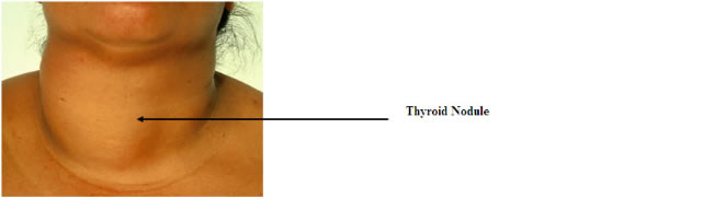What percentage of cystic nodules on a thyroid gland turn to cancer?
